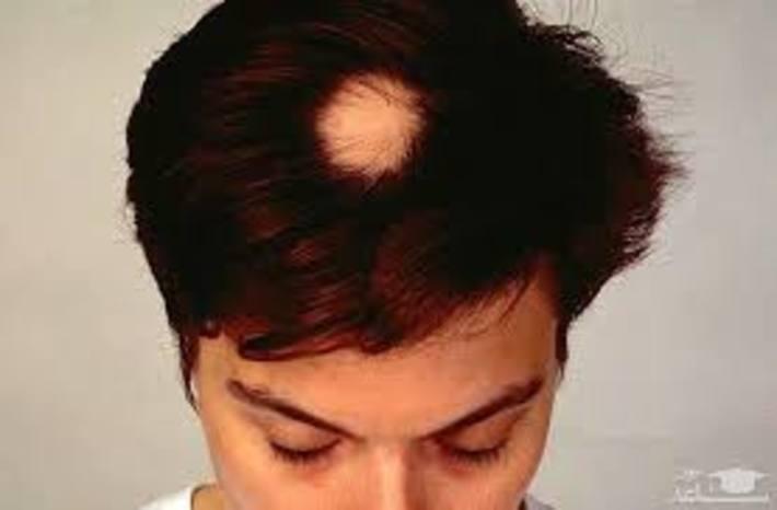علت ریزش موی سکه ای و راه درمان آن چیست ؟ علت ریزش موی سکه ای و راه درمان آن چیست ؟