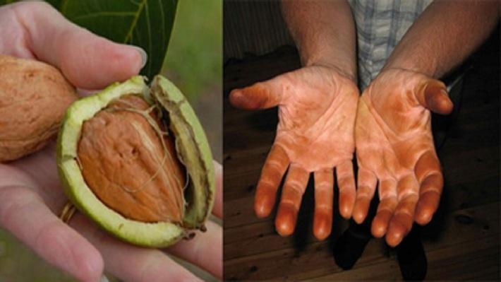 پاک کردن لکه سیاه گردو از دست